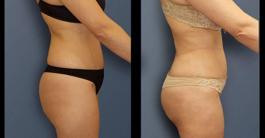 בת 49 שאיבת שומן מותניים וירכיים (1)