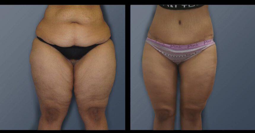 בת 26 לאחר ירידת משקל. מתיחה סיבובית ומתיחת ירכיים (2)