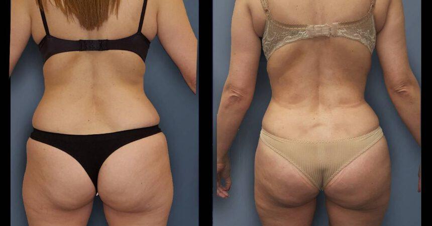 בת 49 שאיבת שומן מותניים וירכיים (2)