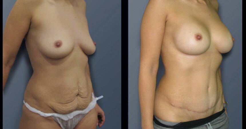 מ בטן והגדלה1