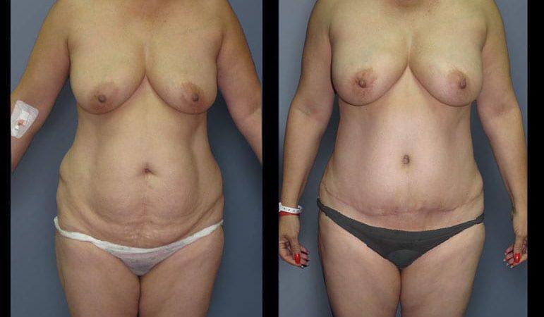 abdominoplasty-13A