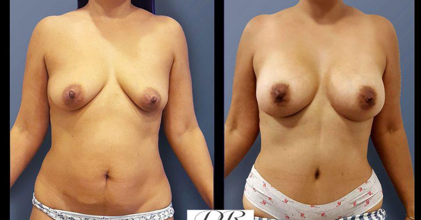 abdominoplasty-1A