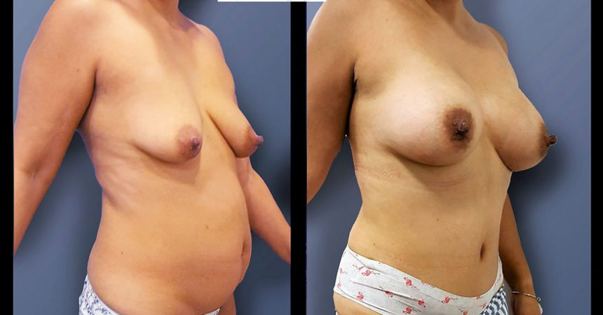 abdominoplasty-1B