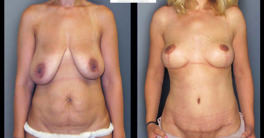 abdominoplasty-4A