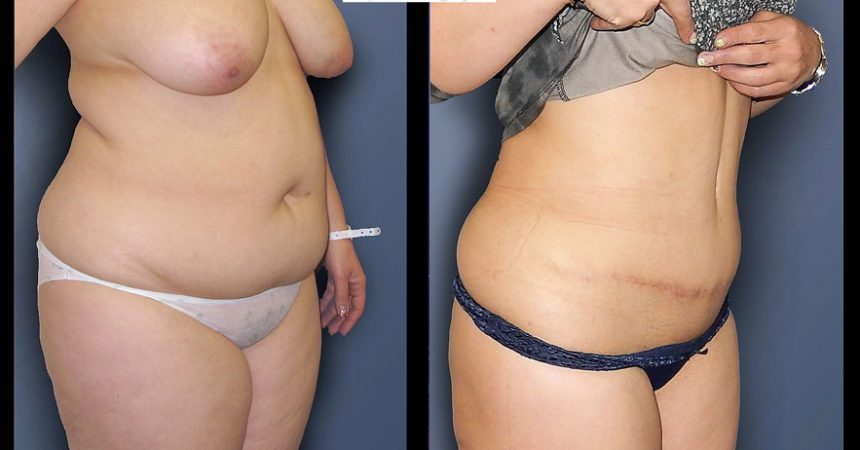 abdominoplasty-5B