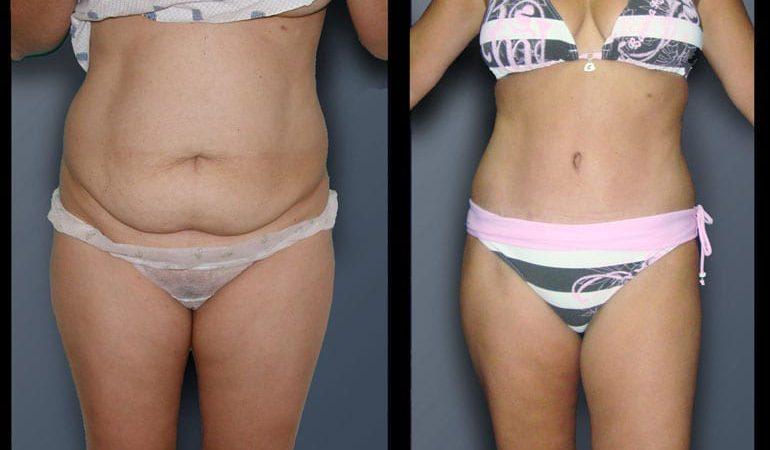 abdominoplasty-7A
