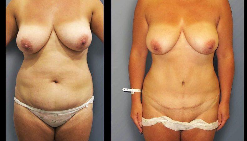 abdominoplasty-9A