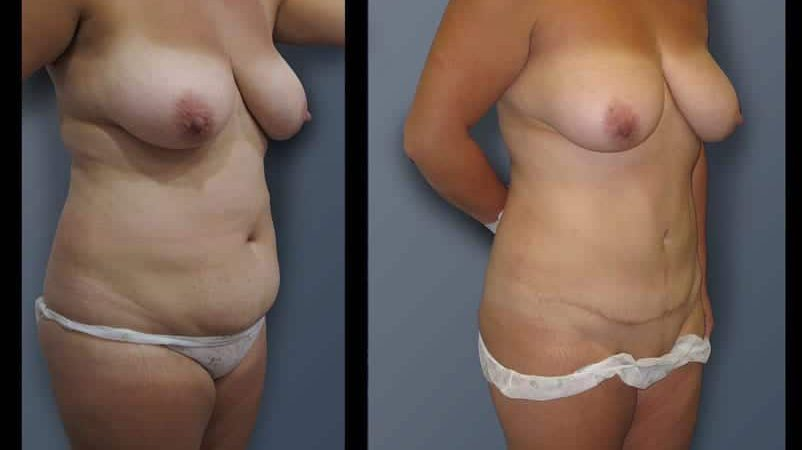 abdominoplasty-9B
