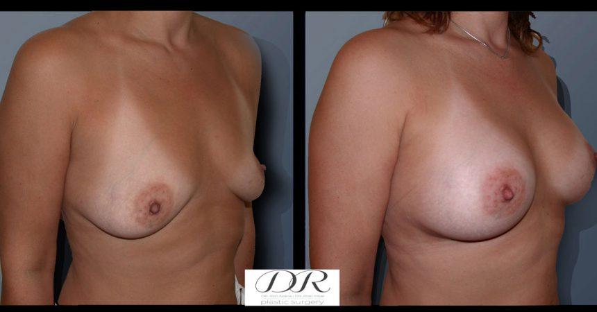 breast-asymmetry-1B