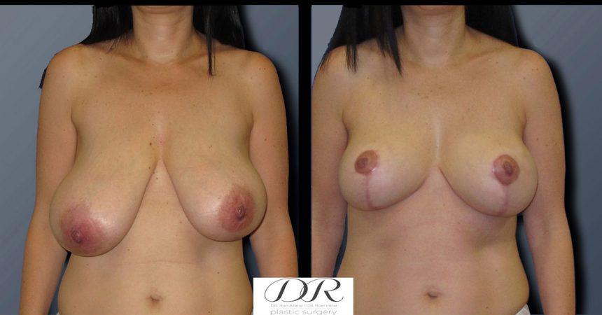 breast-asymmetry-2A
