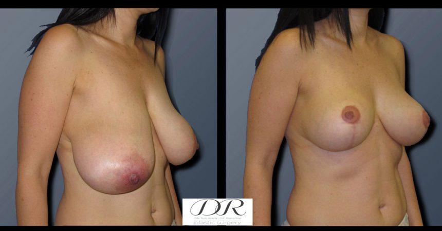 breast-asymmetry-2B