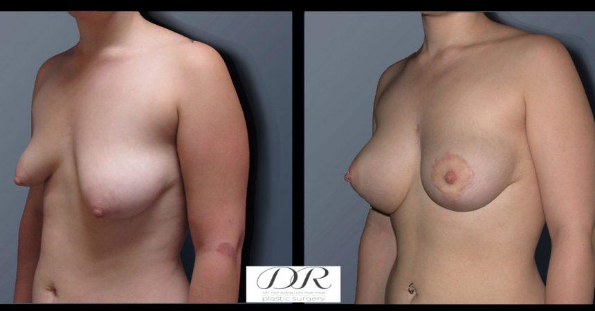 breast-asymmetry-3B