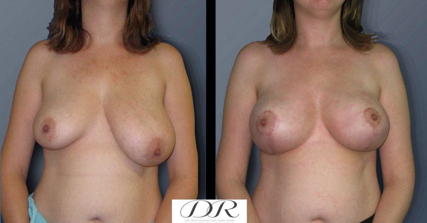 breast-asymmetry-4A