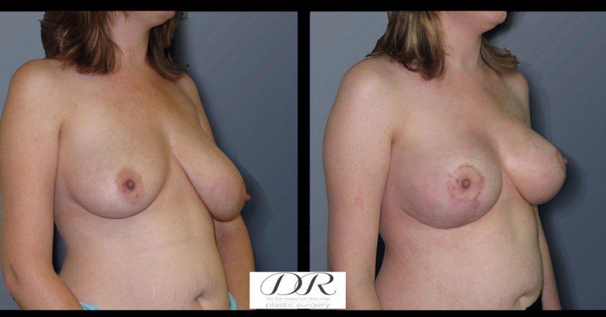 breast-asymmetry-4B