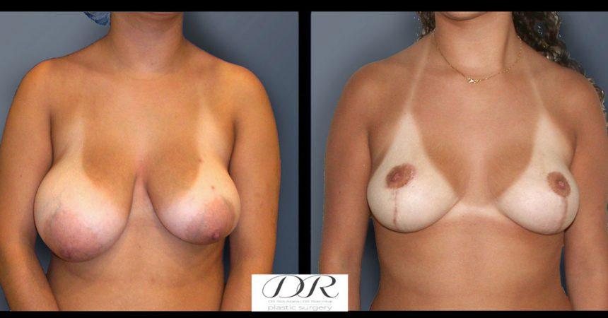 breast-asymmetry-5A