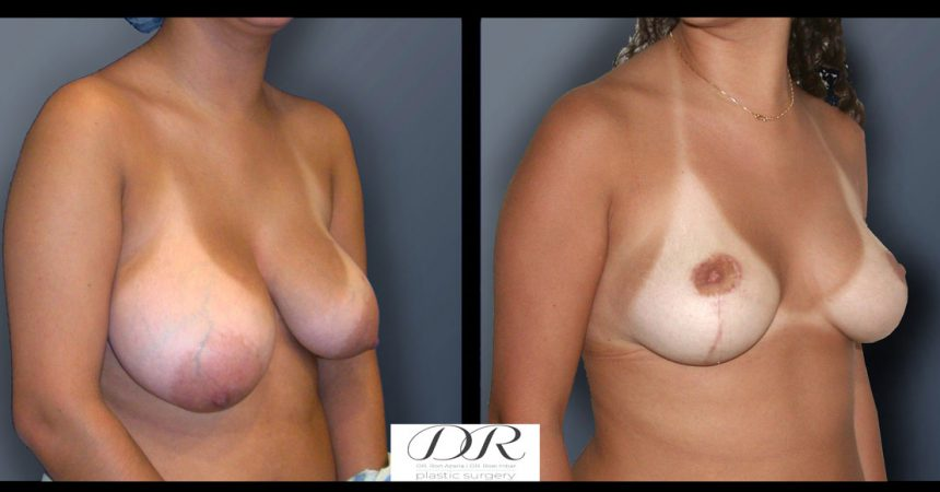 breast-asymmetry-5B