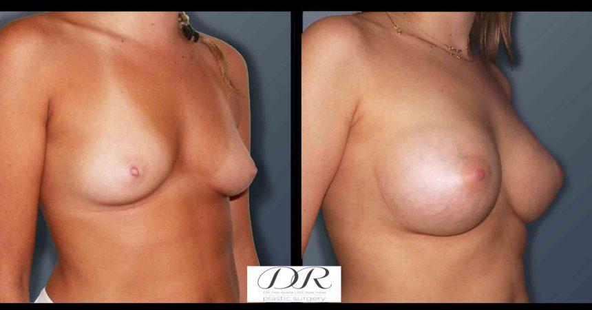 breast-asymmetry-6B