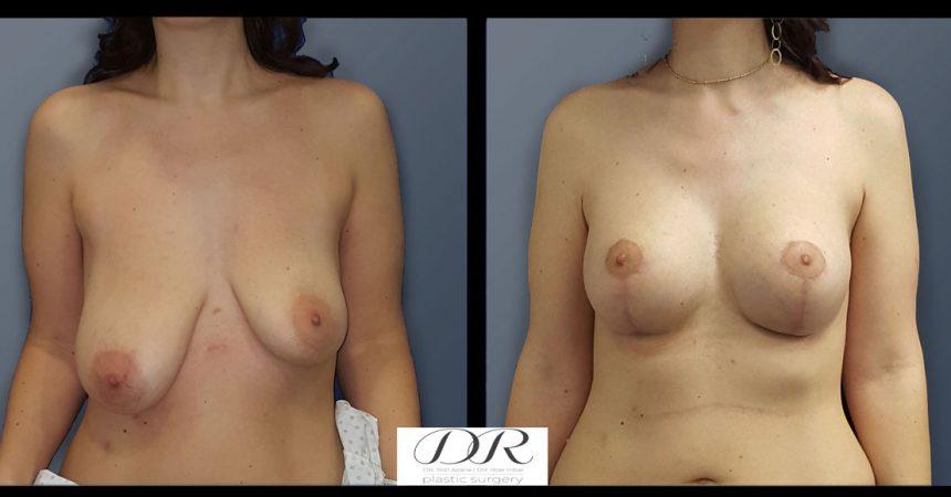 breast-asymmetry-7A