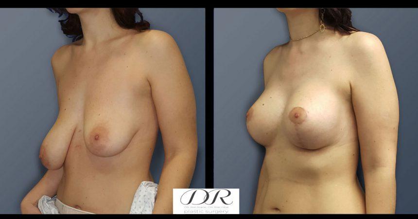 breast-asymmetry-7B