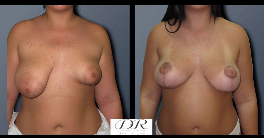 breast-asymmetry-8A