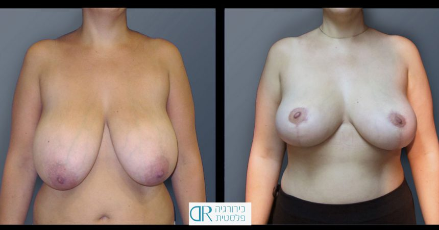 breast-reducton-3A