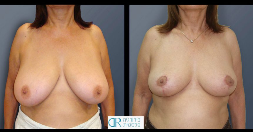 breast-reducton-4A