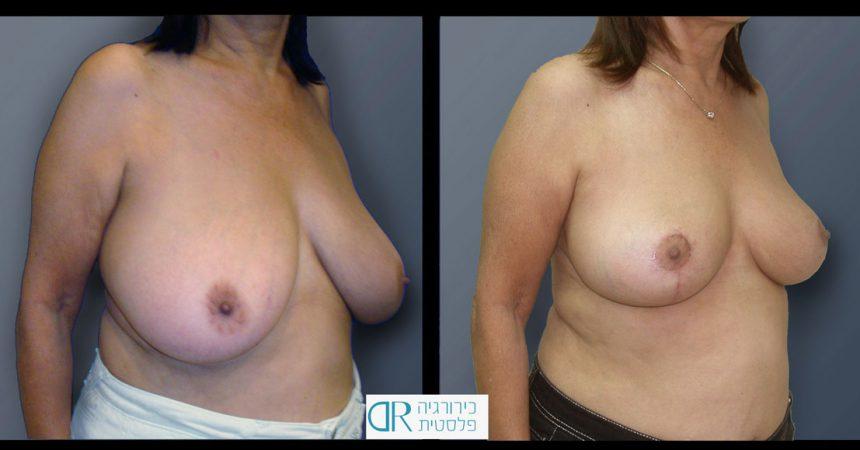 breast-reducton-4B
