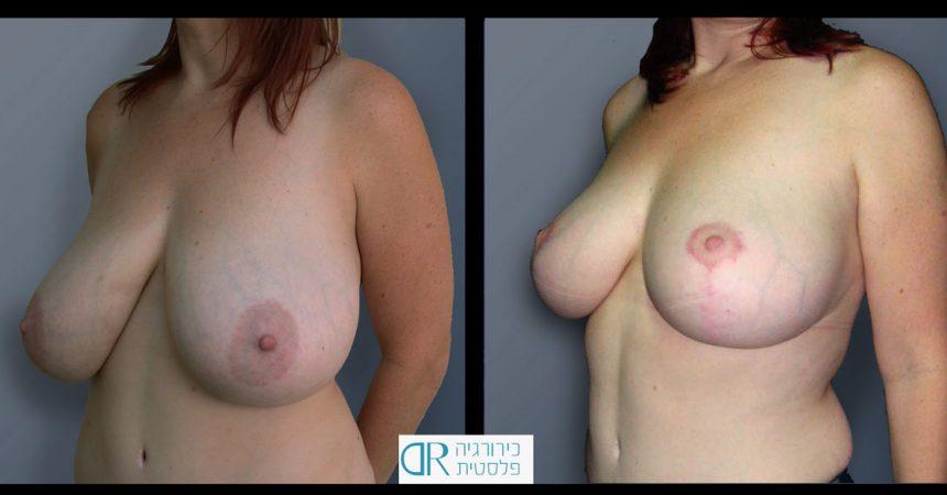 breast-reducton-5B