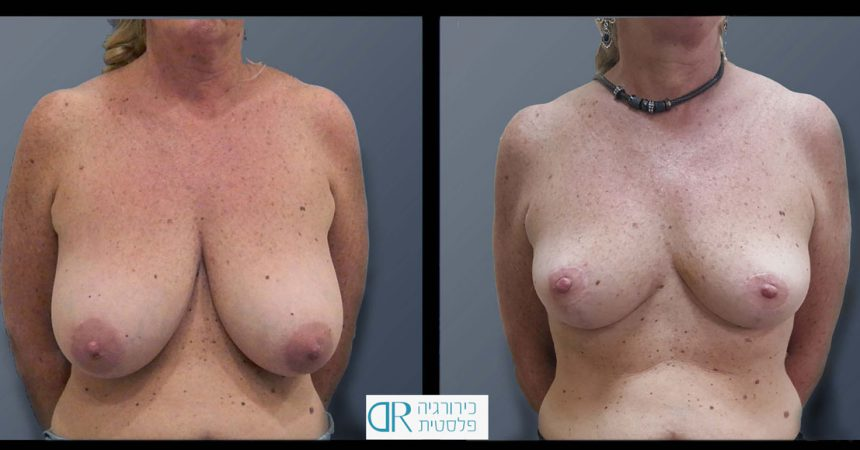 breast-reducton-6A