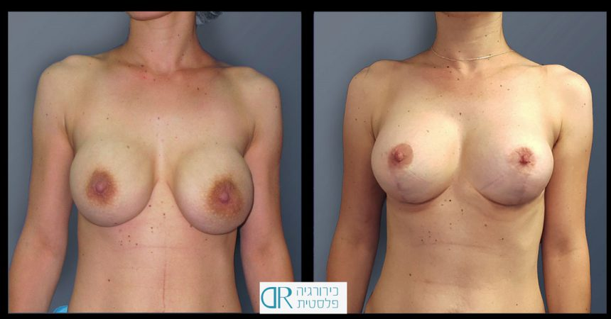 exchange-breast-implants-1A