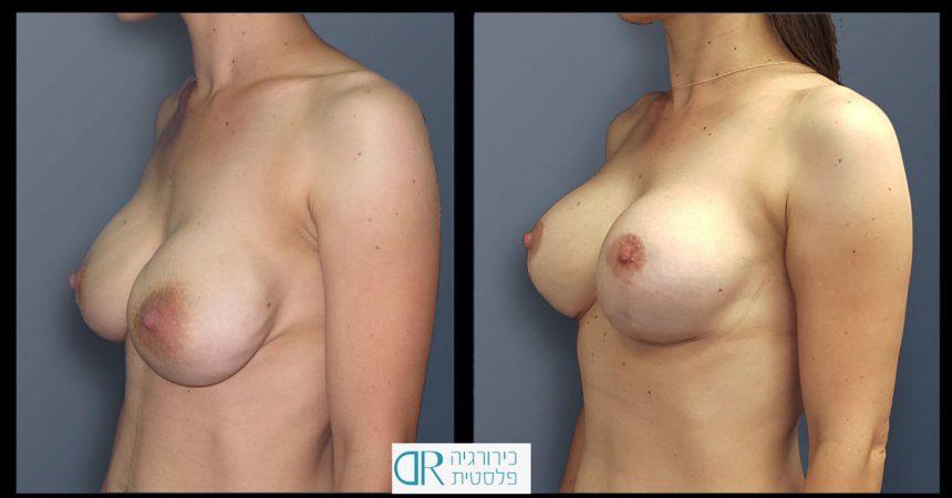 exchange-breast-implants-1B