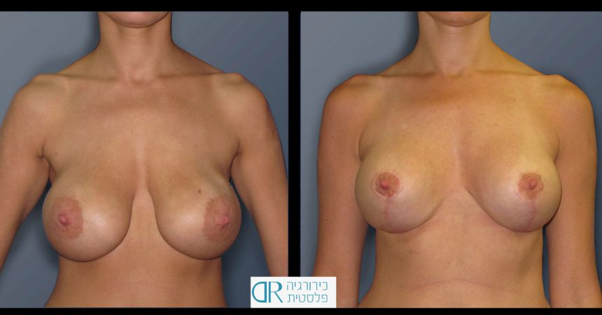 exchange-breast-implants-2A