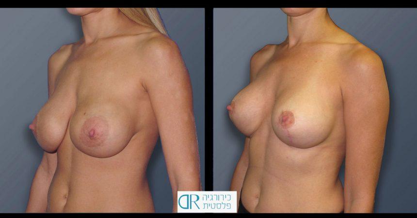 exchange-breast-implants-2B