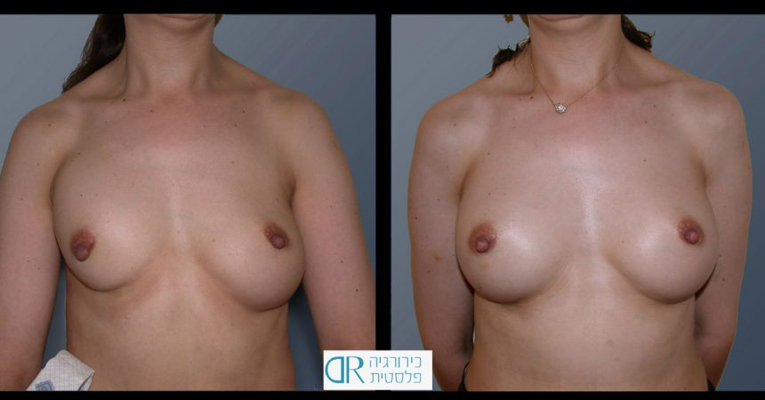 exchange-breast-implants-3A