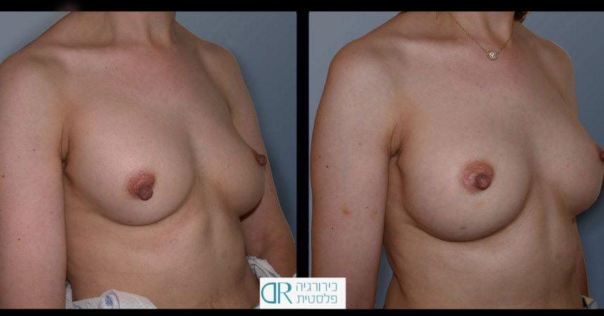 exchange-breast-implants-3B