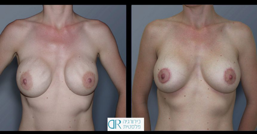 exchange-breast-implants-4A