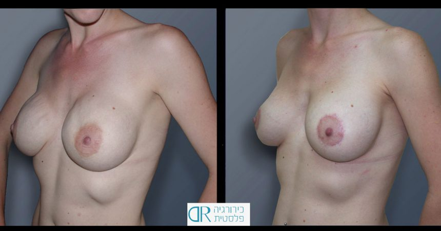 exchange-breast-implants-4B