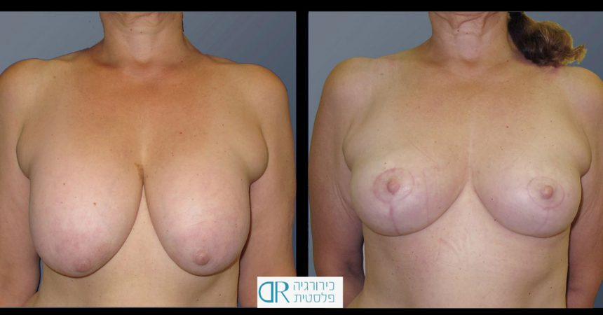 exchange-breast-implants-5A