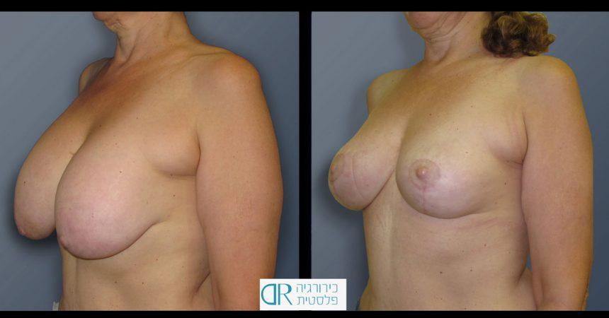 exchange-breast-implants-5B