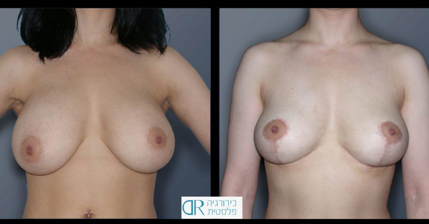 removal-breast-implants-1A