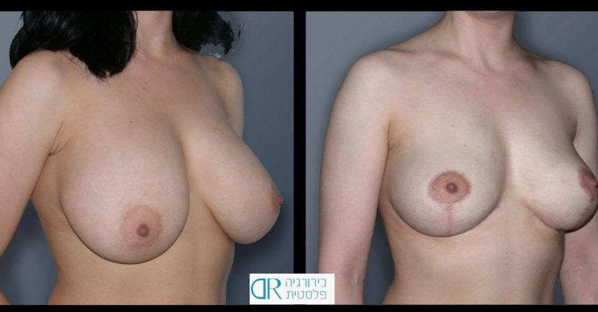 removal-breast-implants-1B