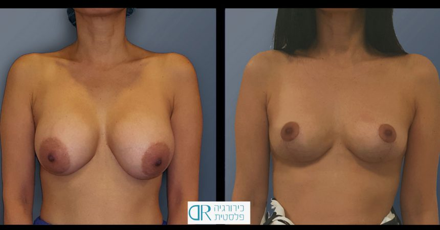 removal-breast-implants-2A