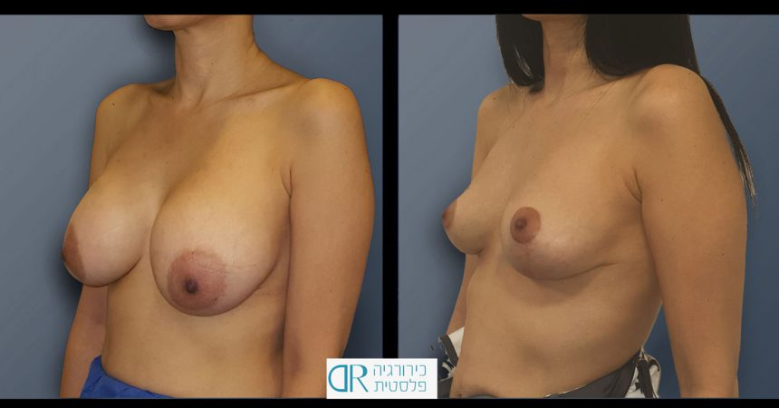 removal-breast-implants-2B