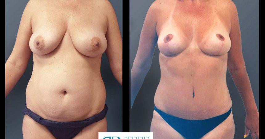 breast-and-abdomen-1A