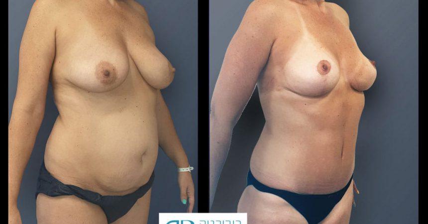 breast-and-abdomen-1B