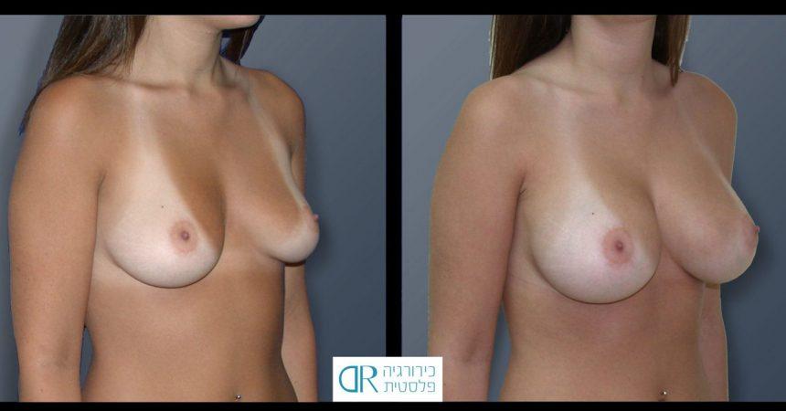 breast-asymmetry-9B