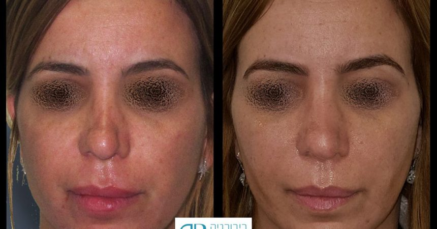 fillers-nose-1A