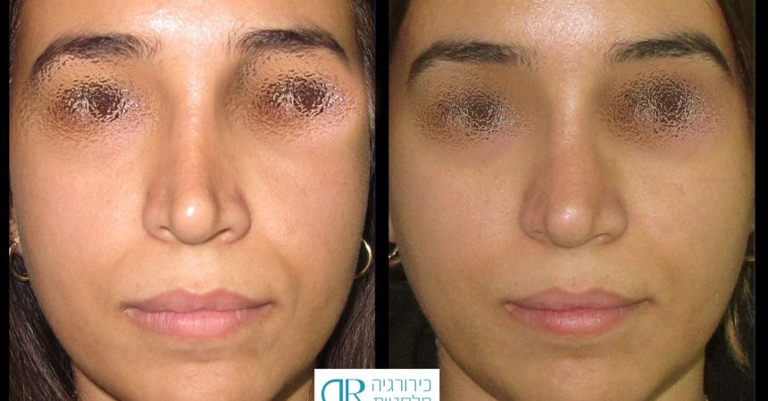 fillers-nose-2A