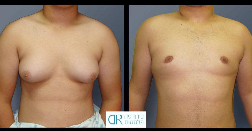 grade-4-gynecomastia-10A