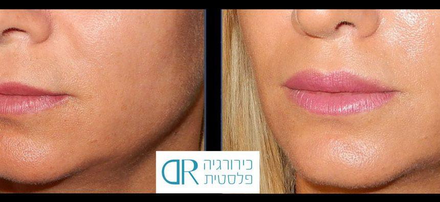 lip-augmentation-1B